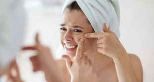 Causes of acne and treatment