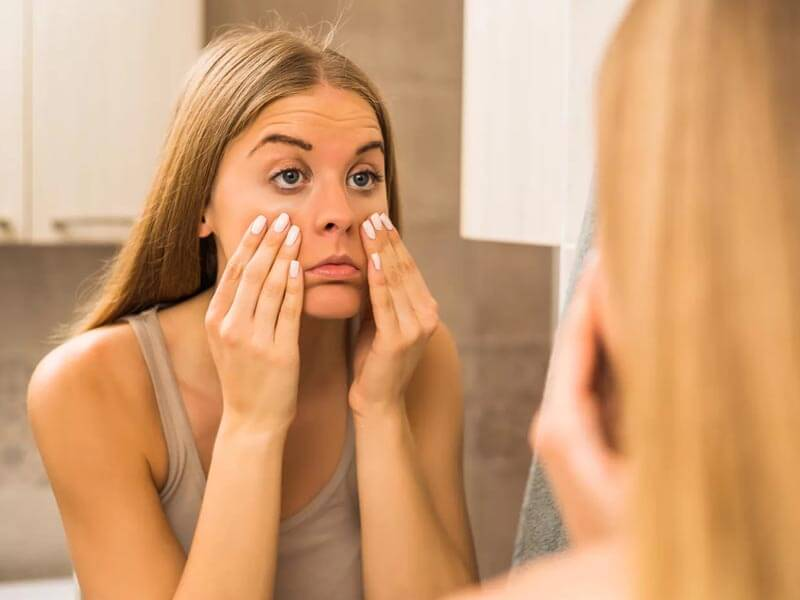 How to get rid of bags under the eyes