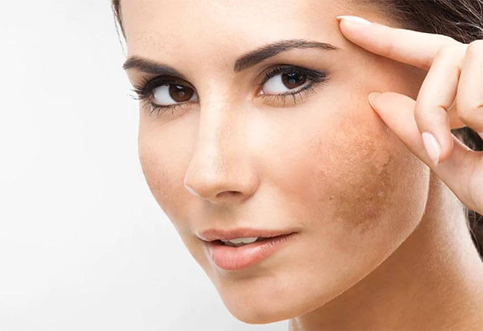 Remedies for discoloration