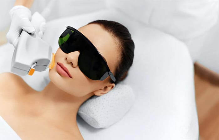 acne laser therapy