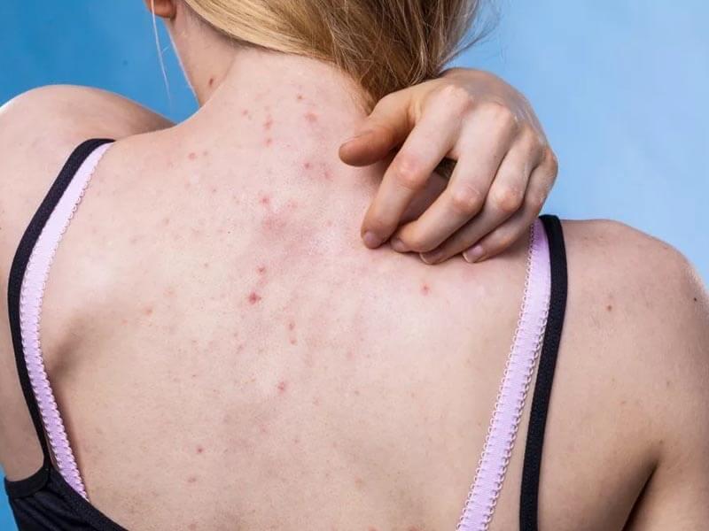 acne on back