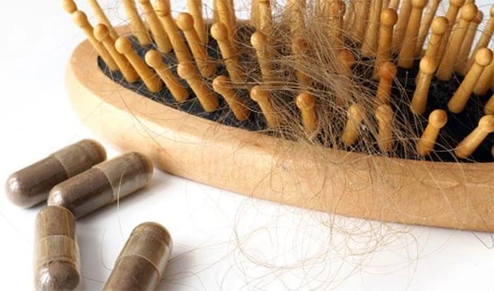 hair loss pills