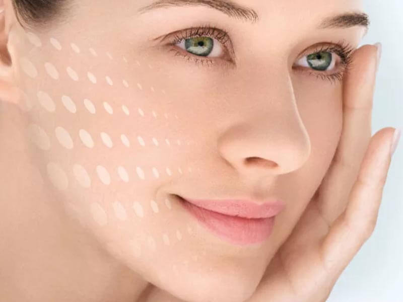 How to get rid of hyperpigmentation after acne?