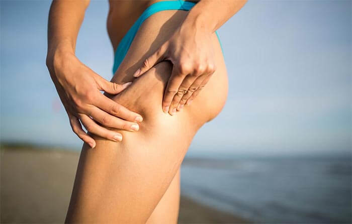 Cellulite - professional solutions