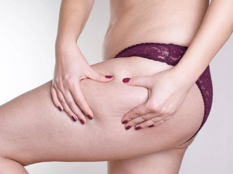Proven methods for cellulite