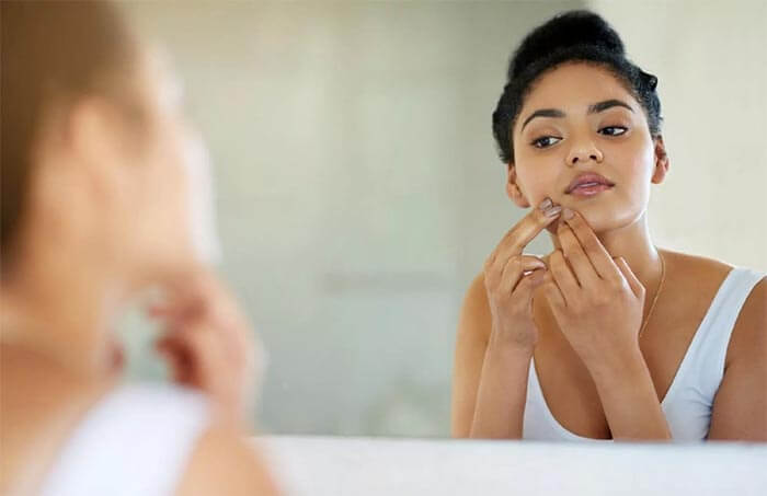 What to look for when fighting pimples