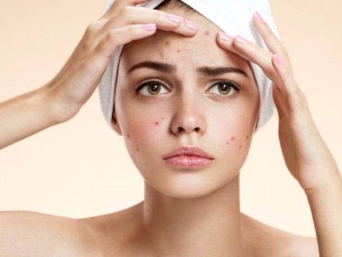 Hormone acne